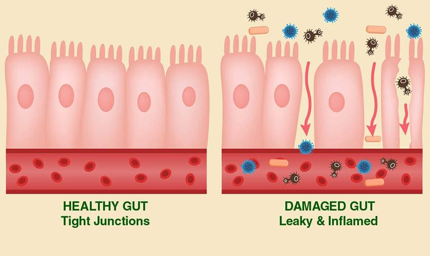 What lectins do to our gut