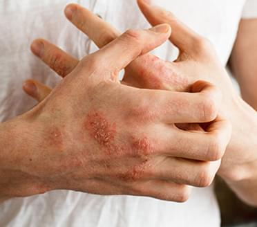 Rashes, eczema, pimples